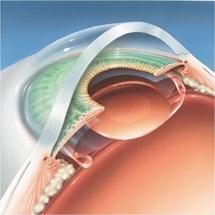 Emplacement de l'implant dans l'oeil