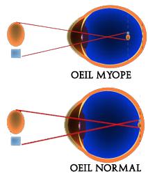 Nouveauté dans le traitement de la myopie : des lentilles souples pour stopper sa progression